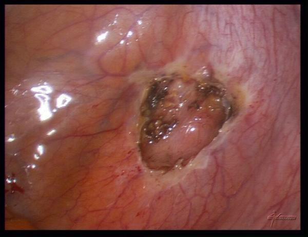 Можно ли забеременеть при эндометриозе