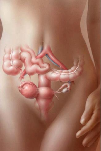 киста яичника симптомы у женщин фото