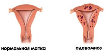 нормальная матка и матка при аденомиозе